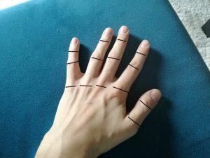 ból palca 300x225 Ból paliczka, przyczyną mogą być zmiany zwyrodnieniowe