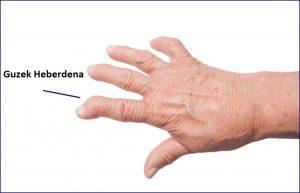 ból palca1 1 300x193 Ból paliczka, przyczyną mogą być zmiany zwyrodnieniowe
