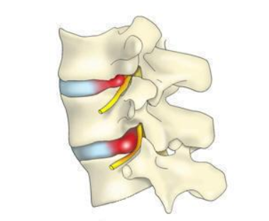 wiczenia rozciągające kręgosłup5 1 - 5 mitów natemat dyskopatii