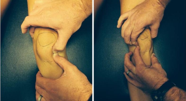 ogranicznie wyprostu kolana - Ograniczenie wyprostu kolana pooperacji? Sprawdź przyczyny