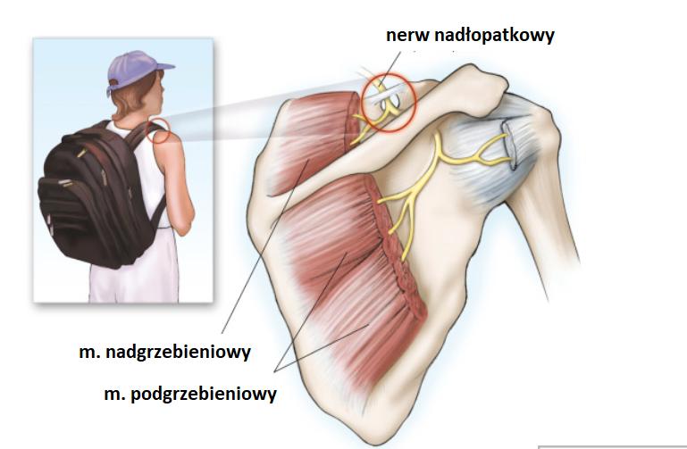 nerw nadłopatkowy - Nerw nadłopatkowy- dlaczego sprawia tyle problemów?