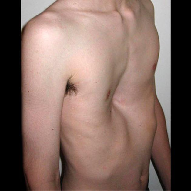 klatka lejkowata1 - Lejkowata klatka piersiowa- co warto wiedzieć?