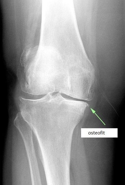 osteofity - Osteofity- co warto o nich wiedzieć?