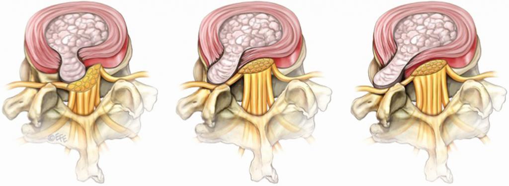 operacja dyskopatii