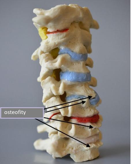 ostry ból kręgosłupa3 - Dlaczego ostry ból kręgosłupa dotyka głównie młode osoby?