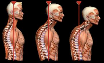 złamanie kompresyjne kręgosłupa.PNGs  - Złamanie kompresyjne kręgosłupa- co warto wiedzieć?