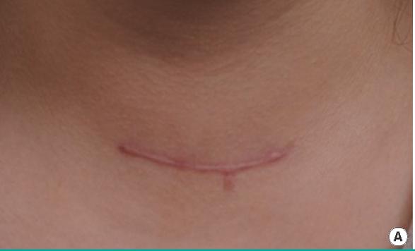 rehabilitacja pooperacji tarczycy1 - Rehabilitacja pousunięciu tarczycy
