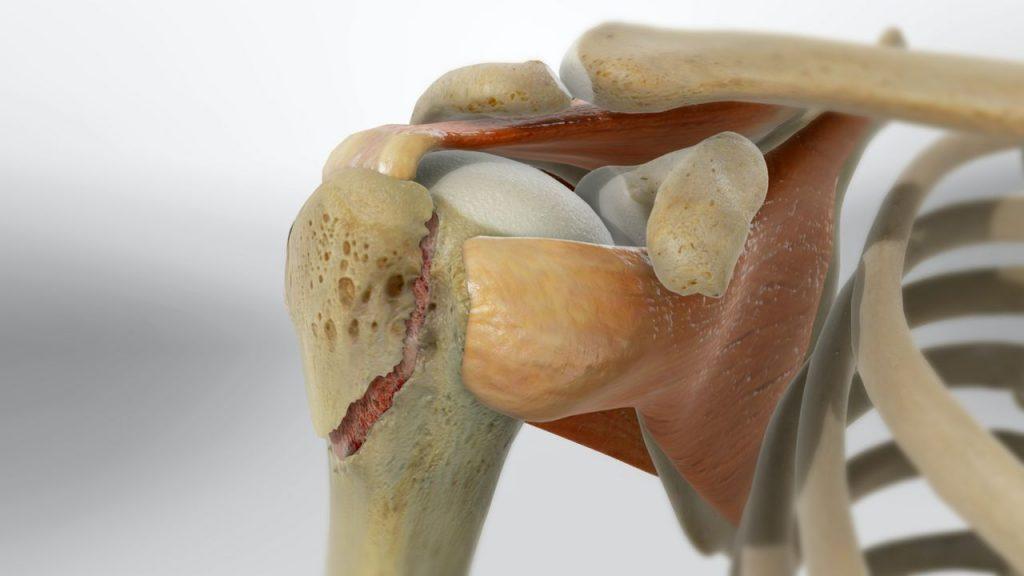 złamanie guzka większego 1024x576 - Złamanie guzka większego kości ramiennej-rehabilitacja