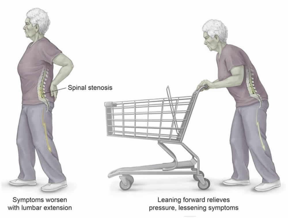 ból nóg podczas chodzenia1 - Ból nóg podczas chodzenia- kręgosłup czytętnice kończyn dolnych?
