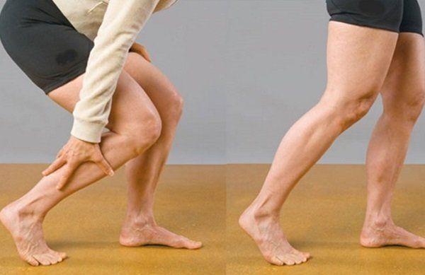 ból nóg podczas chodzenia3 - Ból nóg podczas chodzenia- kręgosłup czytętnice kończyn dolnych?