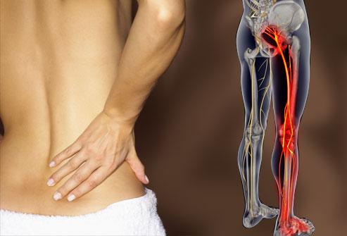 drgania mięśni łydki - Czyrwa kulszowa może powodować drganie mięśni łydki?