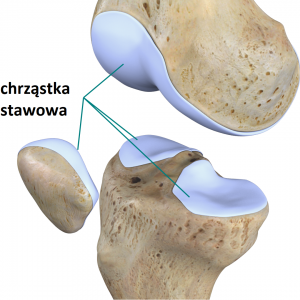 bol pobocznej stronie kolana4 300x300 - Ból pobocznej stronie kolana- jakie mogą być jego przyczyny?