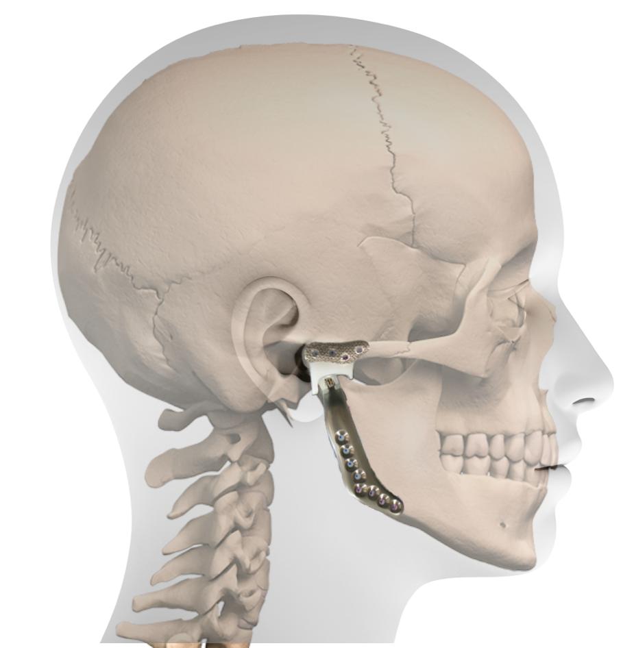 favpng nose standard anatomical position horizontal plane temporomandibular joint anatomy - Dysfunkcje stawu skroniowo-żuchwowego abóle odcinka szyjnego