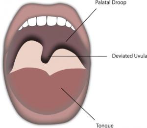 jezyczek podniebienny 300x261 - Odchylony języczek podniebienny może mieć związek zdysfunkcją odcinka szyjnego!