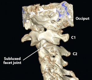 zawroty glowy odkregoslupa szyjnego 300x259 - Zawroty głowy odkręgosłupa szyjnego? Przyczyną może być niestabilność odcinka szyjnego!