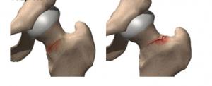zlamanie zmeczeniowe kosci udowej 4 300x122 - Złamanie zmęczeniowe kości udowej- co warto wiedzieć?